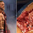 Nouvelles de la WWE: Edge partage des images horribles de la chirurgie du triceps pour prouver que la blessure est réelle