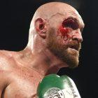 Tyson Fury veut combattre la star de la WWE Drew McIntrye