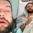 Finn Balor fournit une mise à jour des jours après la chirurgie de la mâchoire